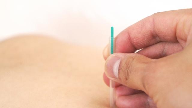 acupuncture 201911